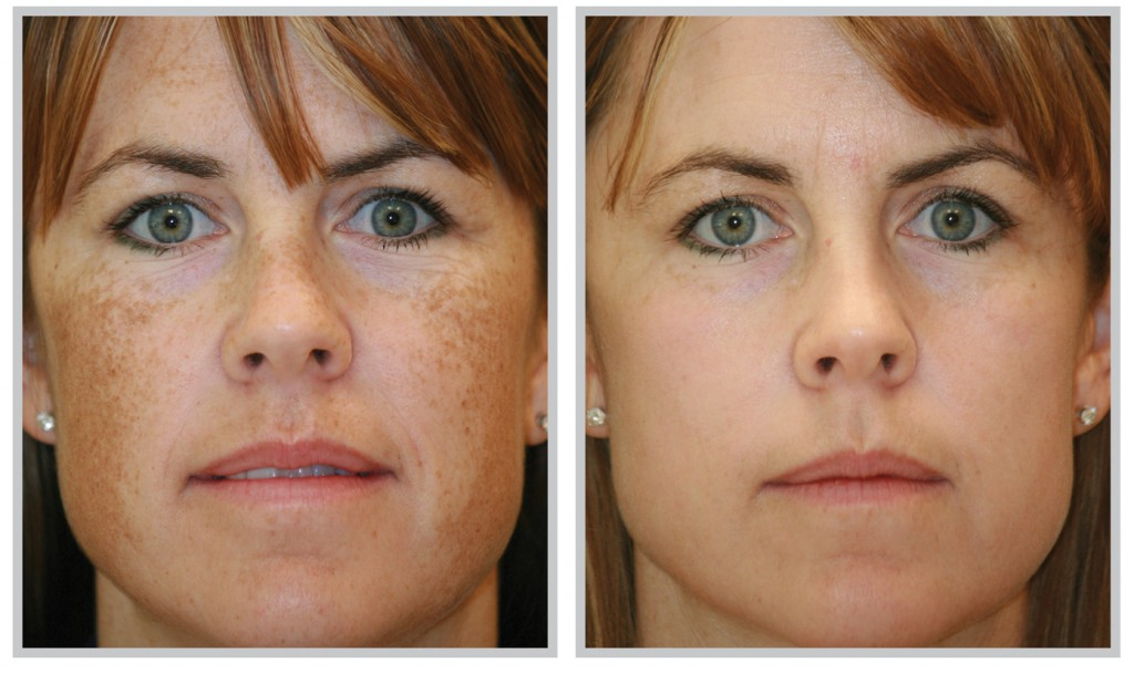 Melasma Removal before and after