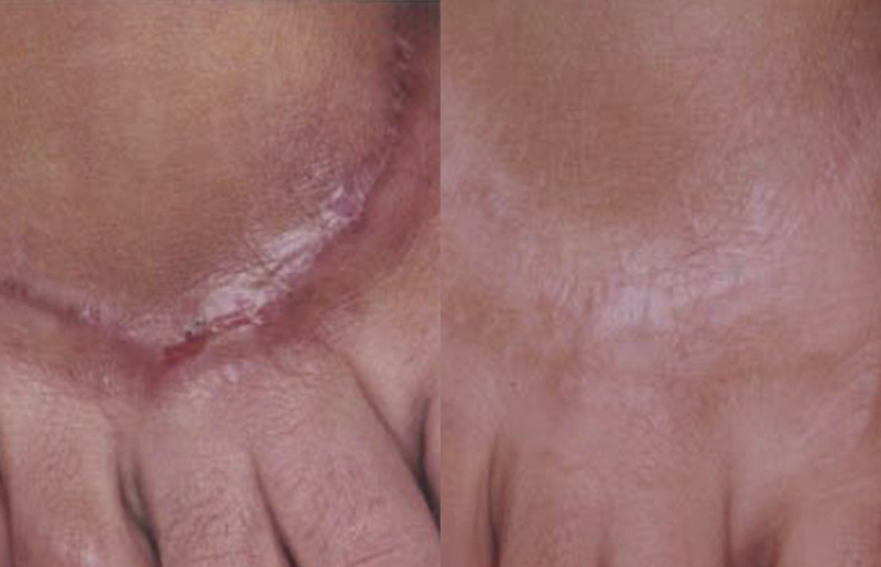 post surgical scar removal before and after