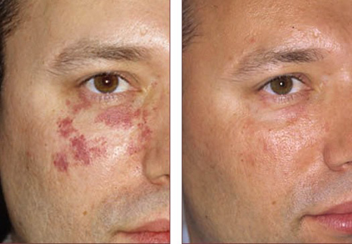 Before And After Skin Rejuvenation In West Palm Beach